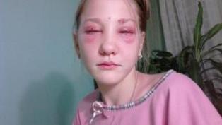 Niat Warnai Alis dan Bulu Mata, Gadis 13 Tahun Ini Malah Buta