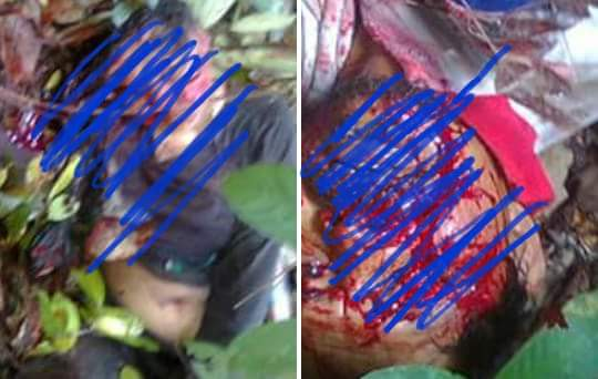 Sepasang Suami Istri Di Teluk Paman Kampar Kiri Terluka Parah Diserang Beruang