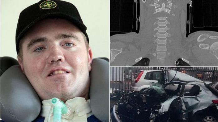 Pria Ini Masih Hidup Meski Kepalanya Lepas dari Tubuh Saat Kecelakaan